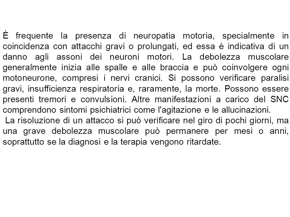 È frequente la presenza di neuropatia motoria, specialmente in coincidenza con attacchi gravi o prolungati, ed essa è indicativa di un danno agli asso