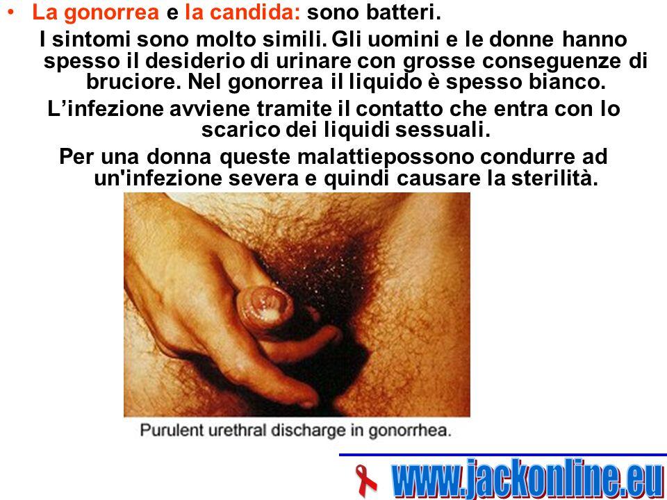 La gonorrea e la candida: sono batteri.I sintomi sono molto simili.
