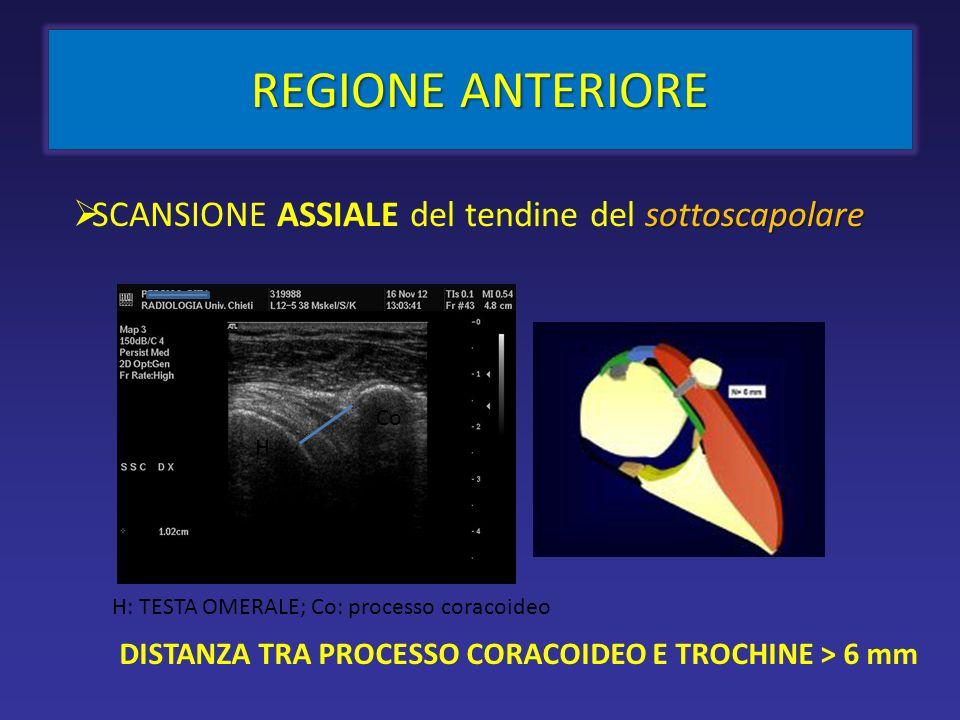 REGIONE ANTERIORE sottoscapolare SCANSIONE ASSIALE del tendine del sottoscapolare DISTANZA TRA PROCESSO CORACOIDEO E TROCHINE > 6 mm Co H H: TESTA OMERALE; Co: processo coracoideo