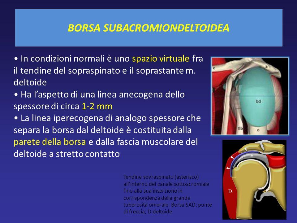 In condizioni normali è uno spazio virtuale fra il tendine del sopraspinato e il soprastante m. deltoide Ha laspetto di una linea anecogena dello spes
