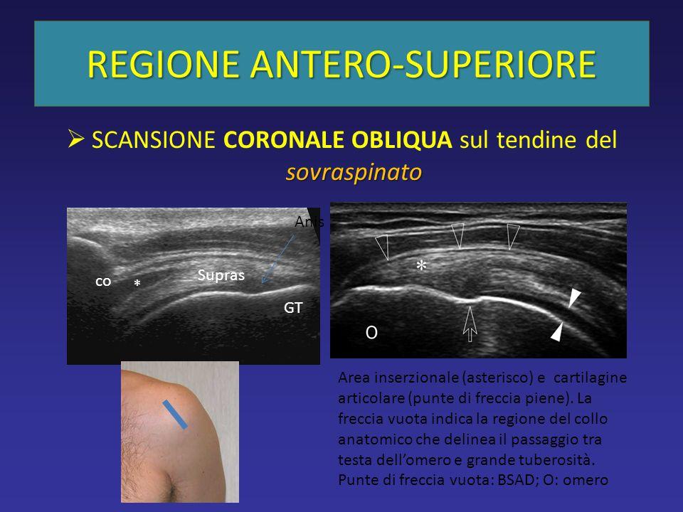 sovraspinato SCANSIONE CORONALE OBLIQUA sul tendine del sovraspinato REGIONE ANTERO-SUPERIORE Supras co GT * Anis Area inserzionale (asterisco) e cartilagine articolare (punte di freccia piene).