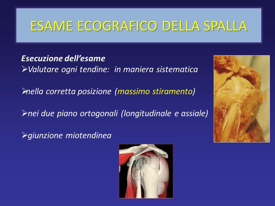 Tendine normale ANATOMIA ECOGRAFICA Fibre collagene lungo lasse di trazione; poche fibre elastiche; fibrociti Endotenonio Epitenonio Paratenonio Vascolarizzazione scarsa e periferica