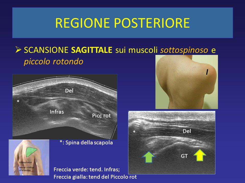 sottospinoso SCANSIONE SAGITTALE sui muscoli sottospinoso e piccolo rotondo REGIONE POSTERIORE Infras Picc rot * Del GT Del * *: Spina della scapola F