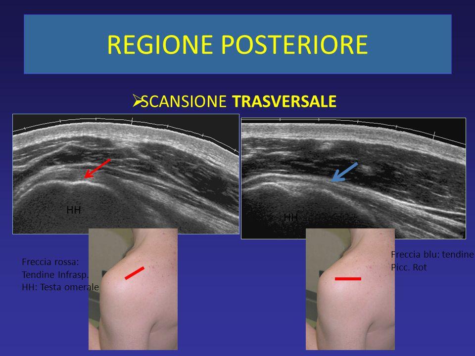 SCANSIONE TRASVERSALE Freccia blu: tendine Picc. Rot Freccia rossa: Tendine Infrasp. HH: Testa omerale HH REGIONE POSTERIORE