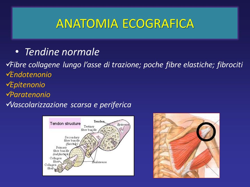 Tendine normale ANATOMIA ECOGRAFICA Fibre collagene lungo lasse di trazione; poche fibre elastiche; fibrociti Endotenonio Epitenonio Paratenonio Vasco