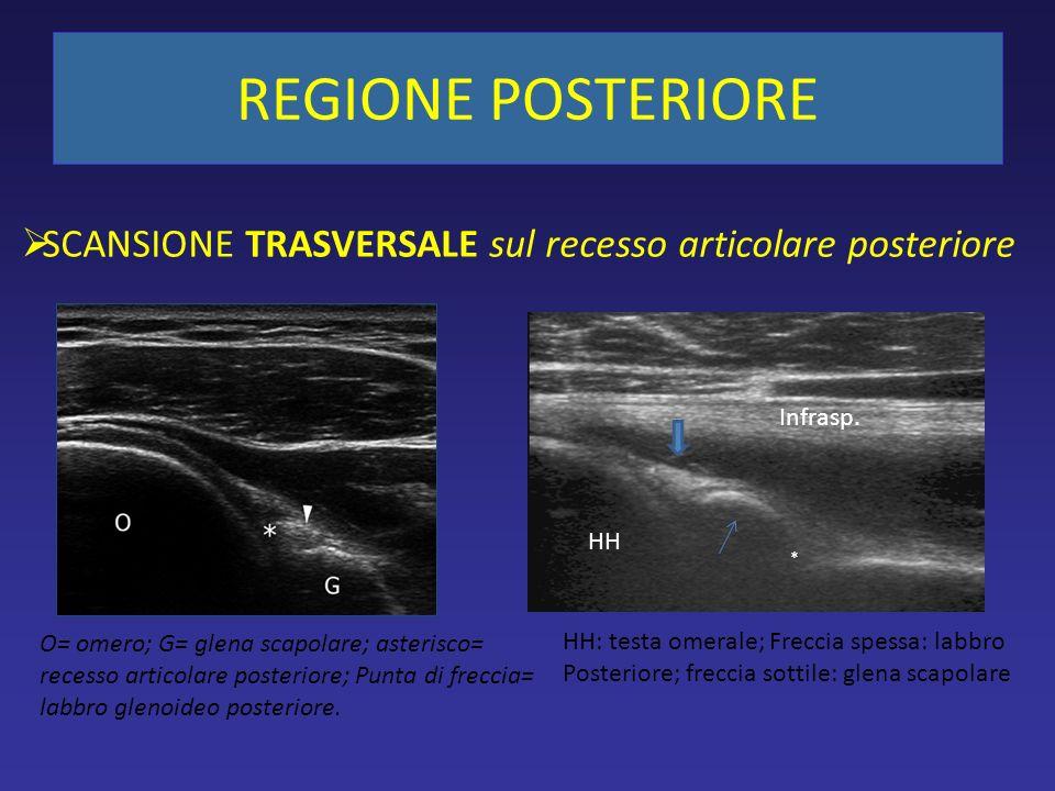 REGIONE POSTERIORE O= omero; G= glena scapolare; asterisco= recesso articolare posteriore; Punta di freccia= labbro glenoideo posteriore. HH Infrasp.