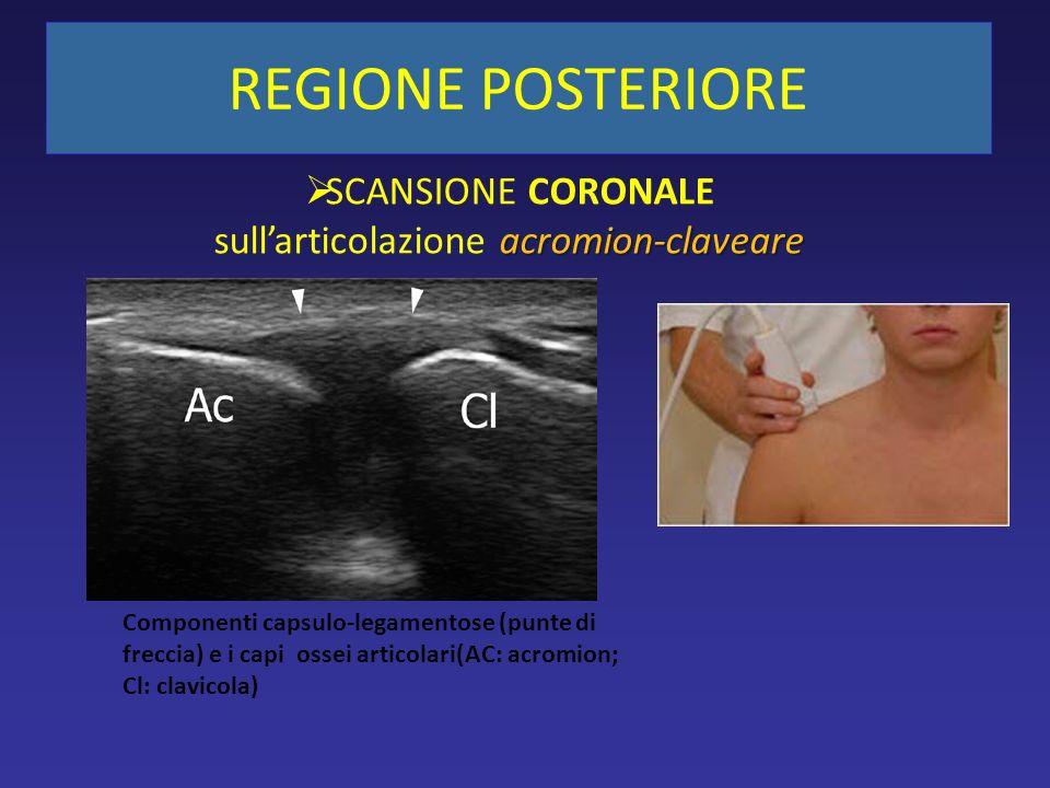 acromion-claveare SCANSIONE CORONALE sullarticolazione acromion-claveare Componenti capsulo-legamentose (punte di freccia) e i capi ossei articolari(AC: acromion; Cl: clavicola) REGIONE POSTERIORE