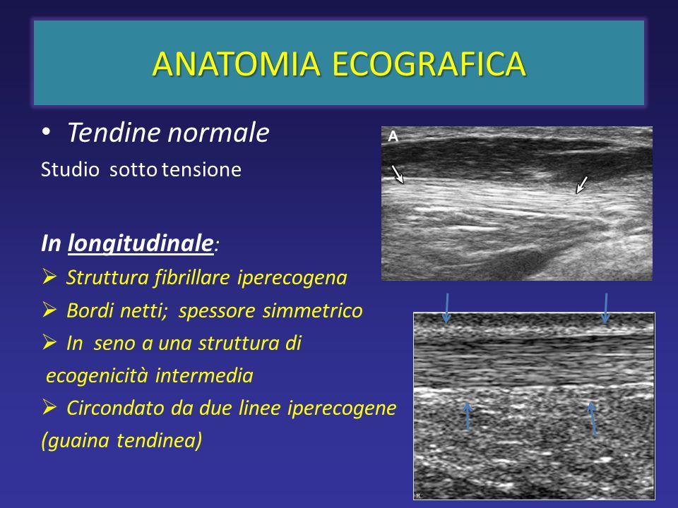 ANATOMIA ECOGRAFICA Tendine normale Studio sotto tensione In longitudinale : Struttura fibrillare iperecogena Bordi netti; spessore simmetrico In seno