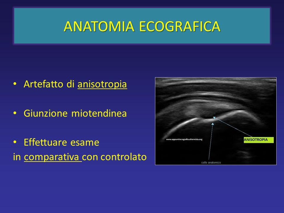 sottoscapolare SCANSIONE SAGITTALE del tendine del sottoscapolare REGIONE ANTERIORE LT Componenti aponeurotico-tendinee iperecogene (punte di freccia) e muscolari (ipoecogene).