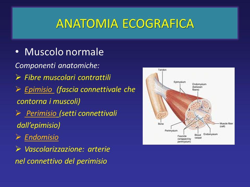 Muscolo normale Componenti anatomiche: Fibre muscolari contrattili Epimisio (fascia connettivale che contorna i muscoli) Perimisio (setti connettivali dallepimisio) Endomisio Vascolarizzazione: arterie nel connettivo del perimisio ANATOMIA ECOGRAFICA