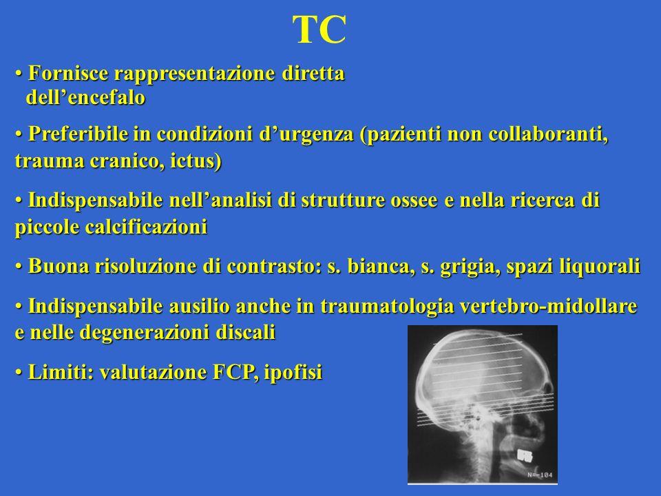 TC Fornisce rappresentazione diretta Fornisce rappresentazione diretta dellencefalo dellencefalo Preferibile in condizioni durgenza (pazienti non coll