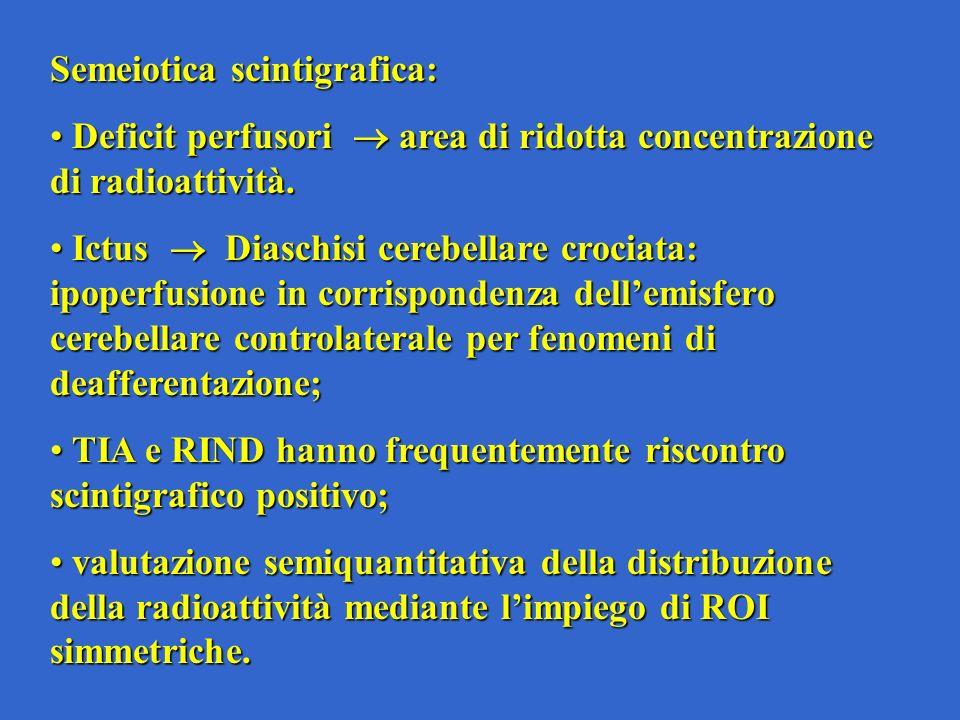 Semeiotica scintigrafica: Deficit perfusori area di ridotta concentrazione di radioattività.