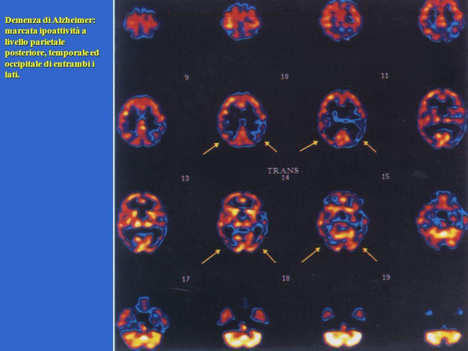 Demenza di Alzheimer: marcata ipoattività a livello parietale posteriore, temporale ed occipitale di entrambi i lati.