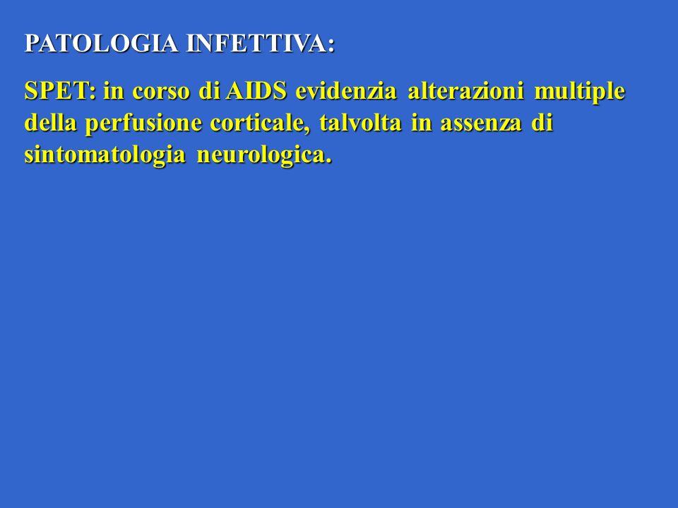 PATOLOGIA INFETTIVA: SPET: in corso di AIDS evidenzia alterazioni multiple della perfusione corticale, talvolta in assenza di sintomatologia neurologica.