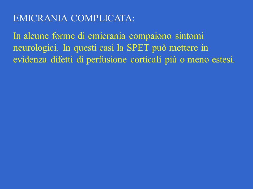 EMICRANIA COMPLICATA: In alcune forme di emicrania compaiono sintomi neurologici.
