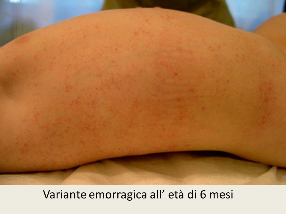 Variante emorragica all età di 6 mesi