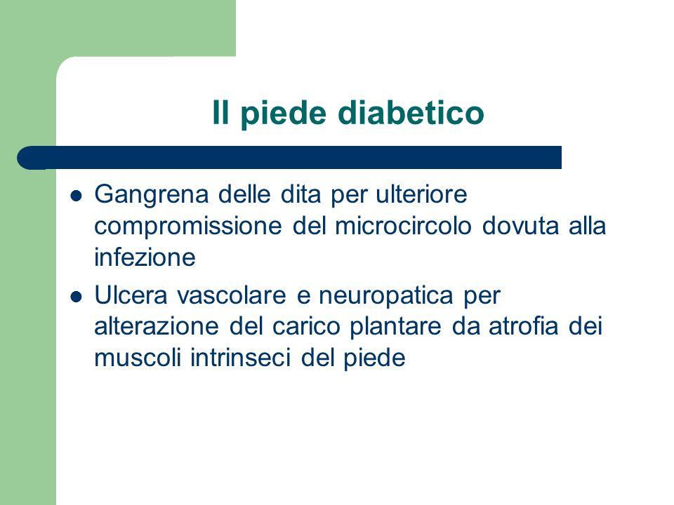 Il piede diabetico Gangrena delle dita per ulteriore compromissione del microcircolo dovuta alla infezione Ulcera vascolare e neuropatica per alterazi
