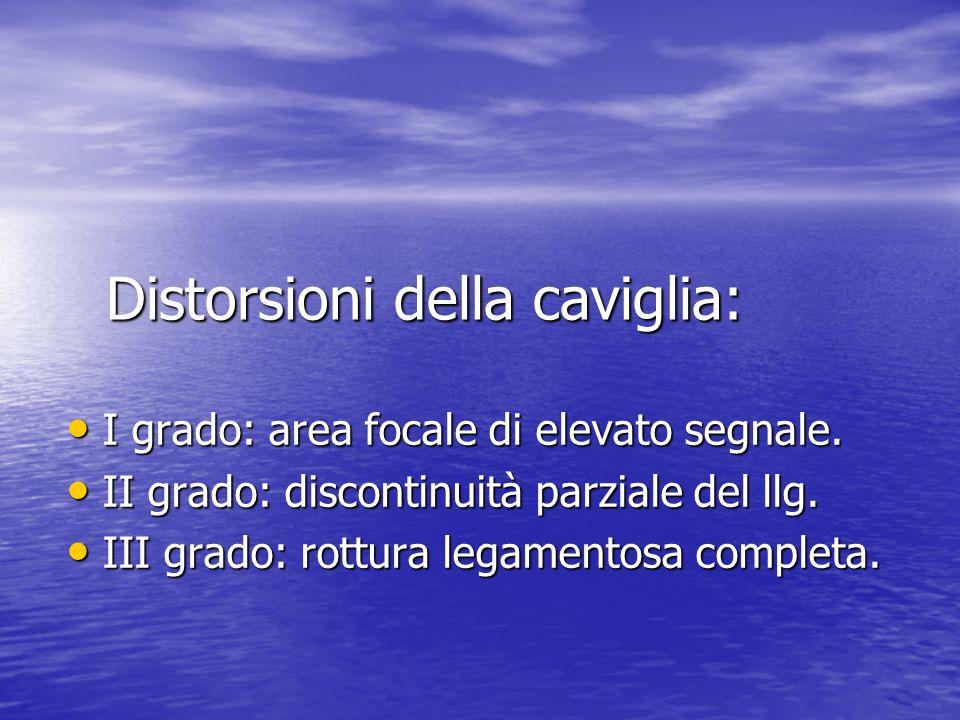 Distorsioni della caviglia: I grado: area focale di elevato segnale. I grado: area focale di elevato segnale. II grado: discontinuità parziale del llg