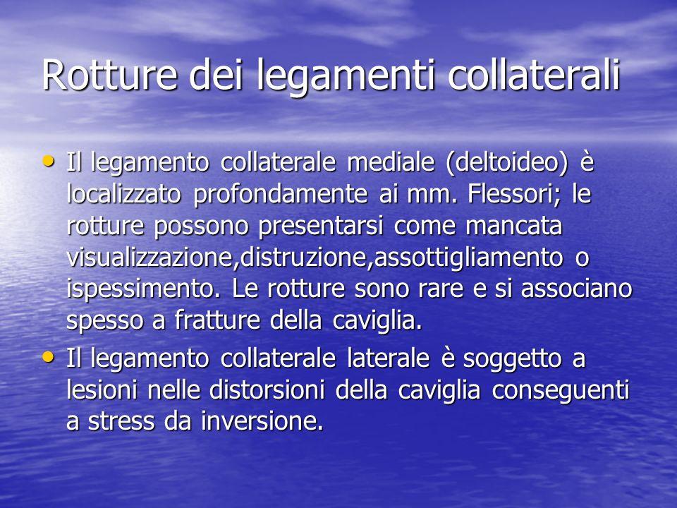 Rotture dei legamenti collaterali Il legamento collaterale mediale (deltoideo) è localizzato profondamente ai mm. Flessori; le rotture possono present