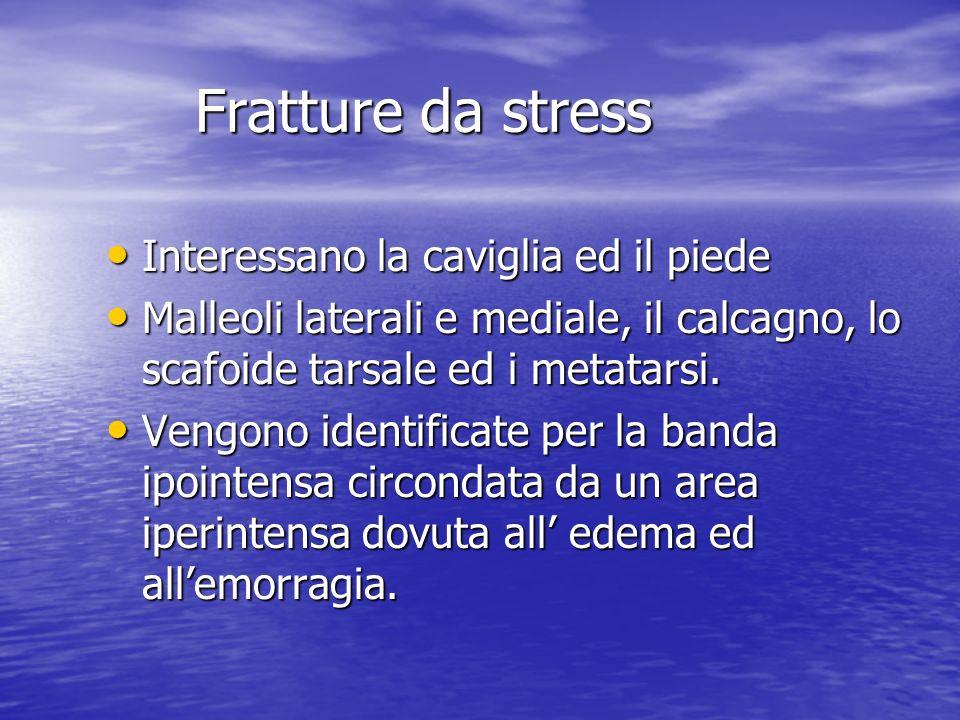 Fratture da stress Interessano la caviglia ed il piede Interessano la caviglia ed il piede Malleoli laterali e mediale, il calcagno, lo scafoide tarsa