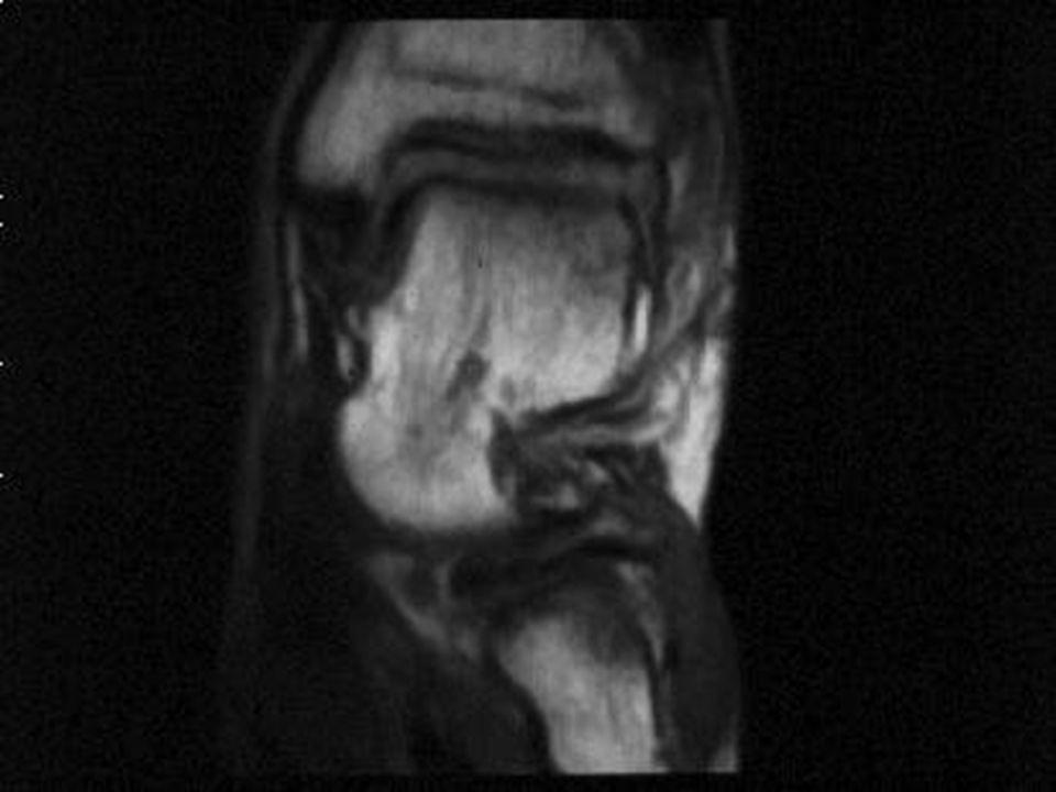 Distorsioni della caviglia Quelle che ledono i legamenti collaterali laterali sono le più comuni Quelle che ledono i legamenti collaterali laterali sono le più comuni