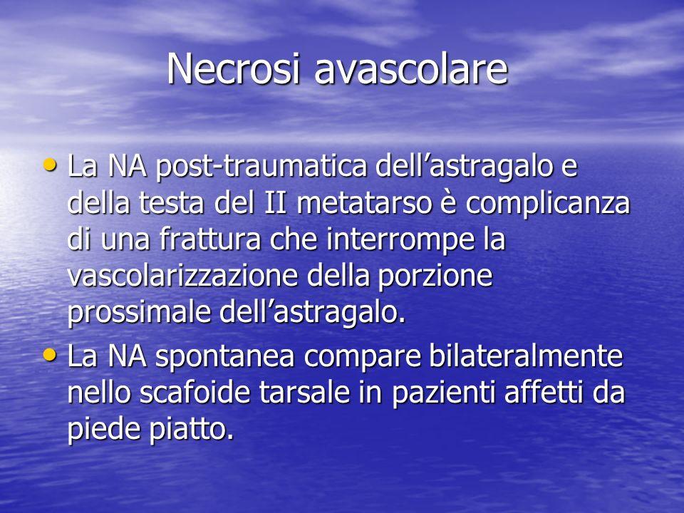 Necrosi avascolare La NA post-traumatica dellastragalo e della testa del II metatarso è complicanza di una frattura che interrompe la vascolarizzazion