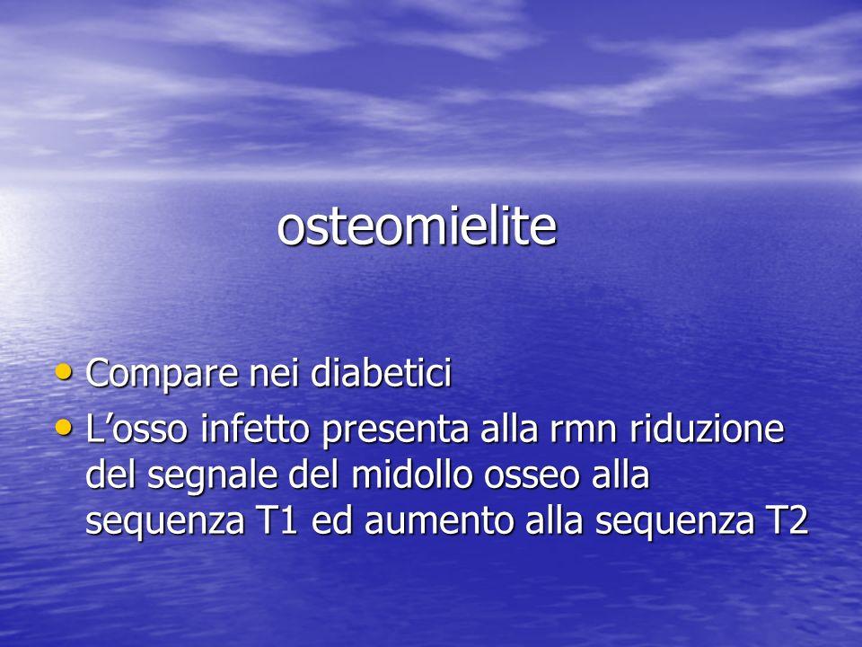 osteomielite Compare nei diabetici Compare nei diabetici Losso infetto presenta alla rmn riduzione del segnale del midollo osseo alla sequenza T1 ed a