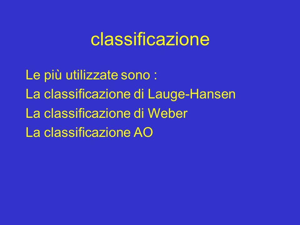 classificazione Le più utilizzate sono : La classificazione di Lauge-Hansen La classificazione di Weber La classificazione AO