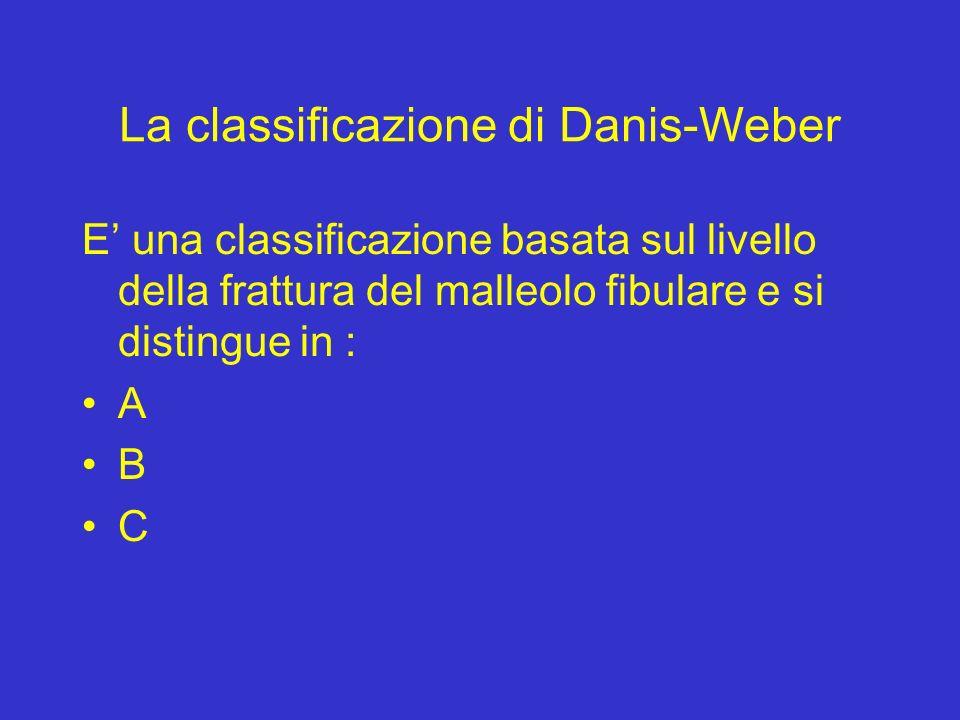 La classificazione di Danis-Weber E una classificazione basata sul livello della frattura del malleolo fibulare e si distingue in : A B C