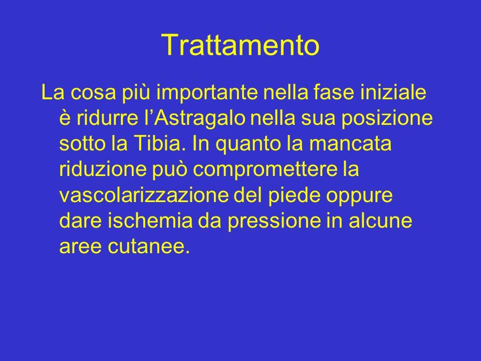 Trattamento La cosa più importante nella fase iniziale è ridurre lAstragalo nella sua posizione sotto la Tibia. In quanto la mancata riduzione può com