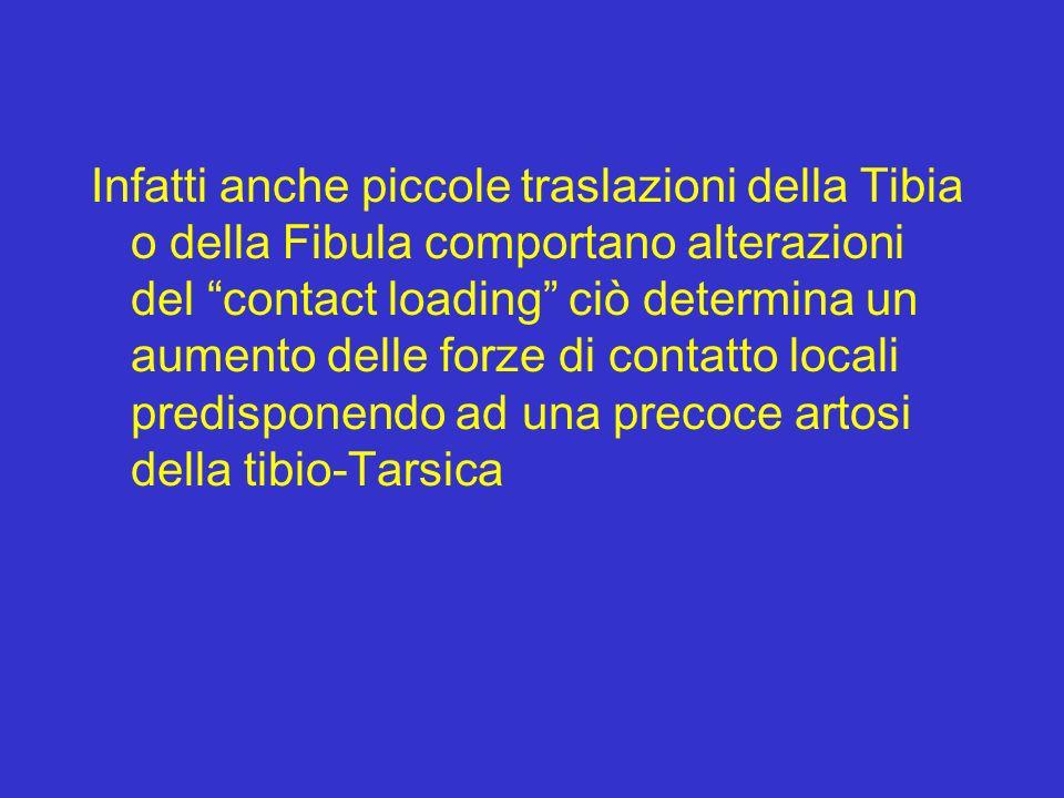 Infatti anche piccole traslazioni della Tibia o della Fibula comportano alterazioni del contact loading ciò determina un aumento delle forze di contat