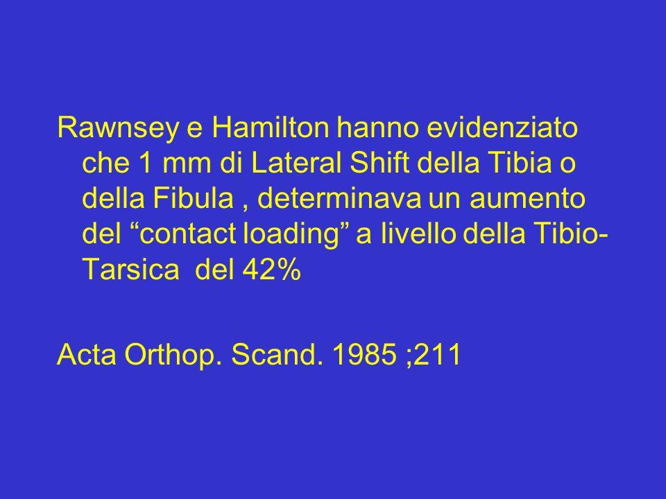 Rawnsey e Hamilton hanno evidenziato che 1 mm di Lateral Shift della Tibia o della Fibula, determinava un aumento del contact loading a livello della