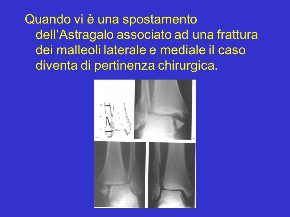 Quando vi è una spostamento dellAstragalo associato ad una frattura dei malleoli laterale e mediale il caso diventa di pertinenza chirurgica.