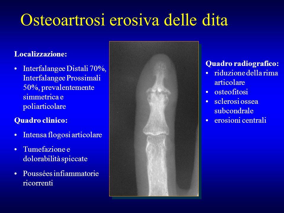 Osteoartrosi erosiva delle dita Quadro radiografico: riduzione della rima articolare osteofitosi sclerosi ossea subcondrale erosioni centrali Quadro c