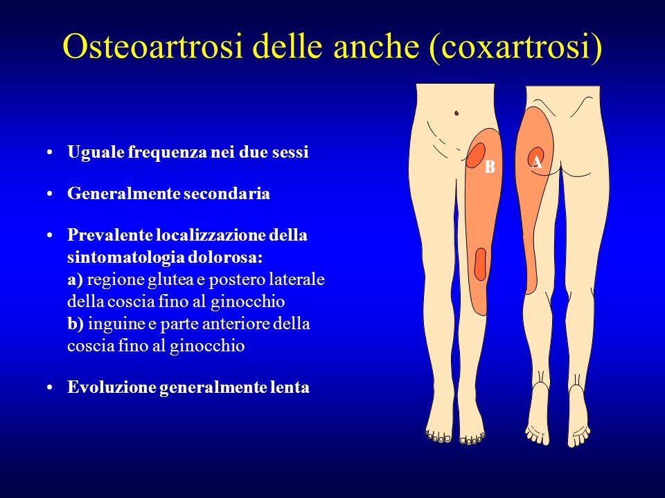 Osteoartrosi delle anche (coxartrosi) Uguale frequenza nei due sessi Generalmente secondaria Prevalente localizzazione della sintomatologia dolorosa:
