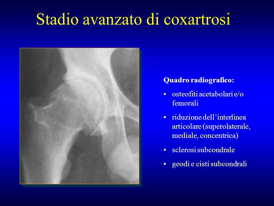 Stadio avanzato di coxartrosi Quadro radiografico: osteofiti acetabolari e/o femorali riduzione dellinterlinea articolare (superolaterale, mediale, co