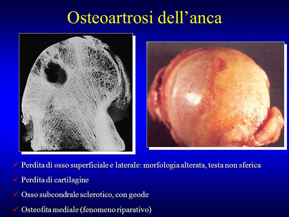 Perdita di osso superficiale e laterale: morfologia alterata, testa non sferica Perdita di osso superficiale e laterale: morfologia alterata, testa no