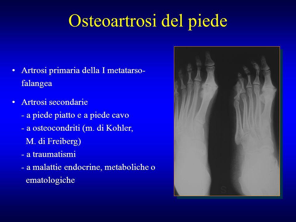 Osteoartrosi del piede Artrosi primaria della I metatarso- falangea Artrosi secondarie - a piede piatto e a piede cavo - a osteocondriti (m. di Kohler