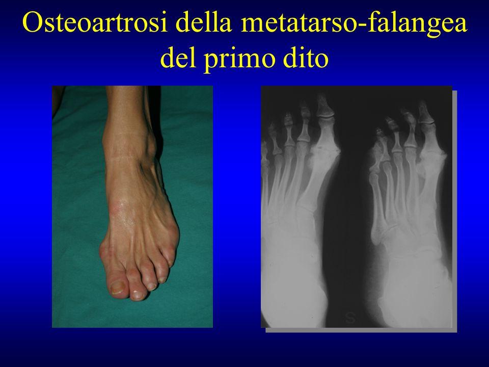Osteoartrosi della metatarso-falangea del primo dito