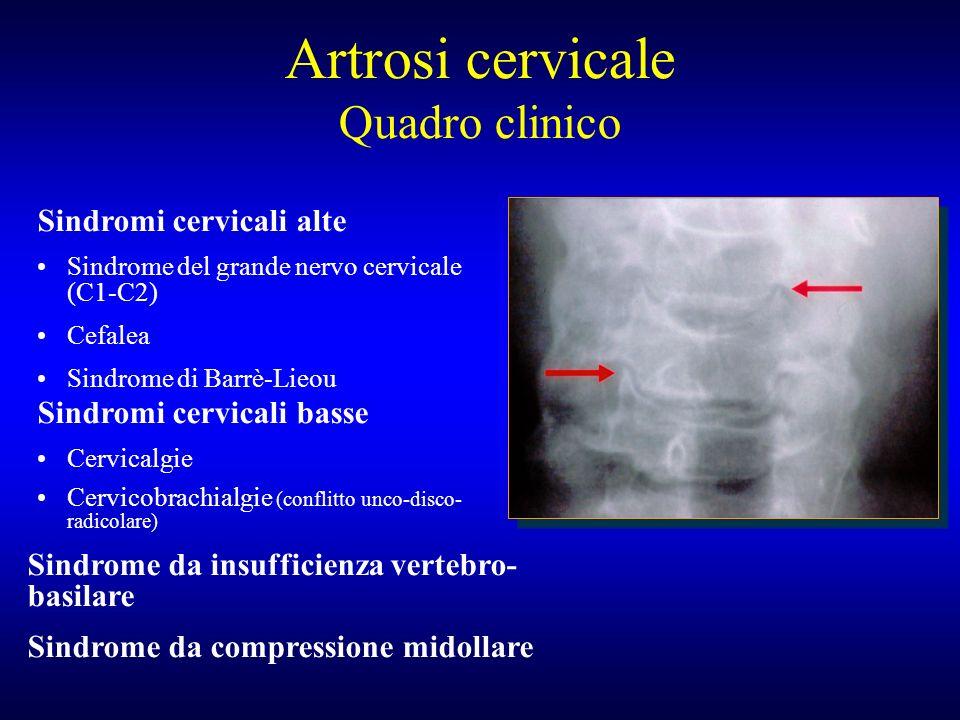 Artrosi cervicale Quadro clinico Sindromi cervicali alte Sindrome del grande nervo cervicale (C1-C2) Cefalea Sindrome di Barrè-Lieou Sindromi cervical
