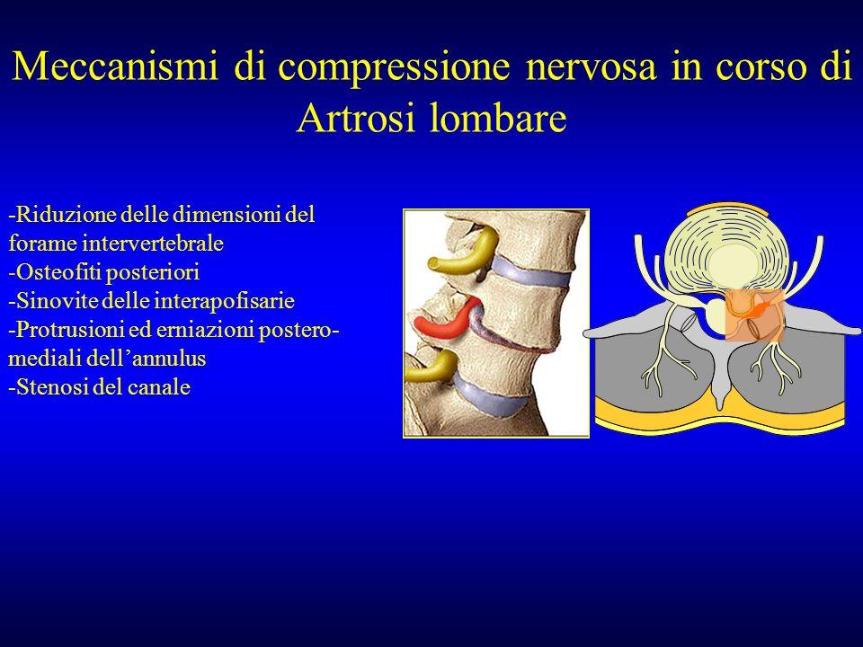 Meccanismi di compressione nervosa in corso di Artrosi lombare -Riduzione delle dimensioni del forame intervertebrale -Osteofiti posteriori -Sinovite