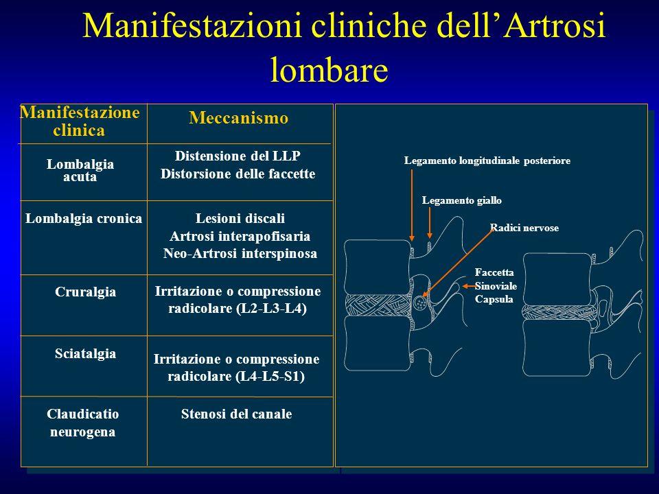 Manifestazioni cliniche dellArtrosi lombare Manifestazione clinica Lombalgia acuta Meccanismo Distensione del LLP Distorsione delle faccette Lombalgia