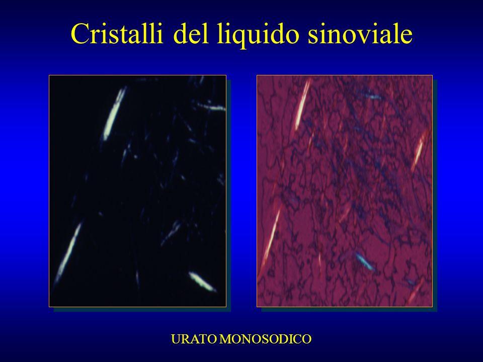 Cristalli del liquido sinoviale URATO MONOSODICO