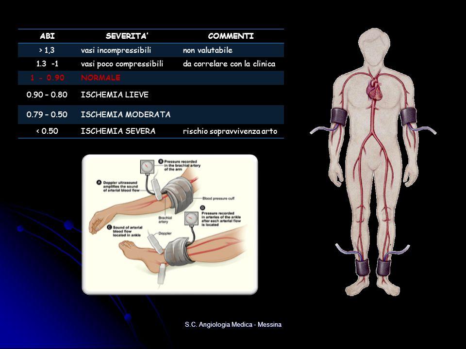 S.C. Angiologia Medica - Messina ABISEVERITACOMMENTI > 1,3vasi incompressibilinon valutabile 1.3 -1vasi poco compressibilida correlare con la clinica