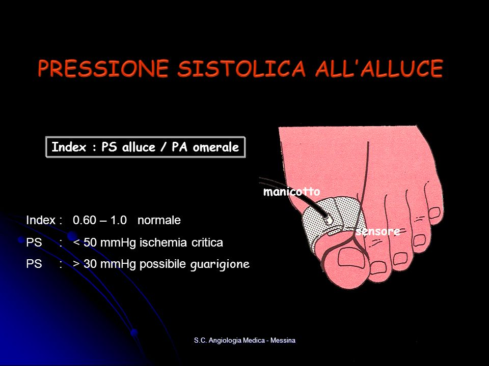 manicotto sensore Index : PS alluce / PA omerale Index : 0.60 – 1.0 normale PS : < 50 mmHg ischemia critica PS : > 30 mmHg possibile guarigione S.C.