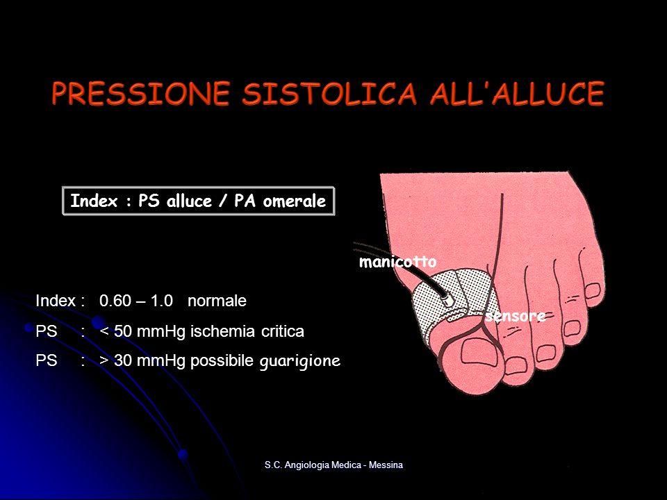 manicotto sensore Index : PS alluce / PA omerale Index : 0.60 – 1.0 normale PS : < 50 mmHg ischemia critica PS : > 30 mmHg possibile guarigione S.C. A