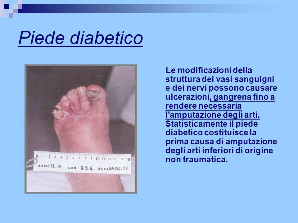 Piede diabetico Le modificazioni della struttura dei vasi sanguigni e dei nervi possono causare ulcerazioni, gangrena fino a rendere necessaria l'ampu