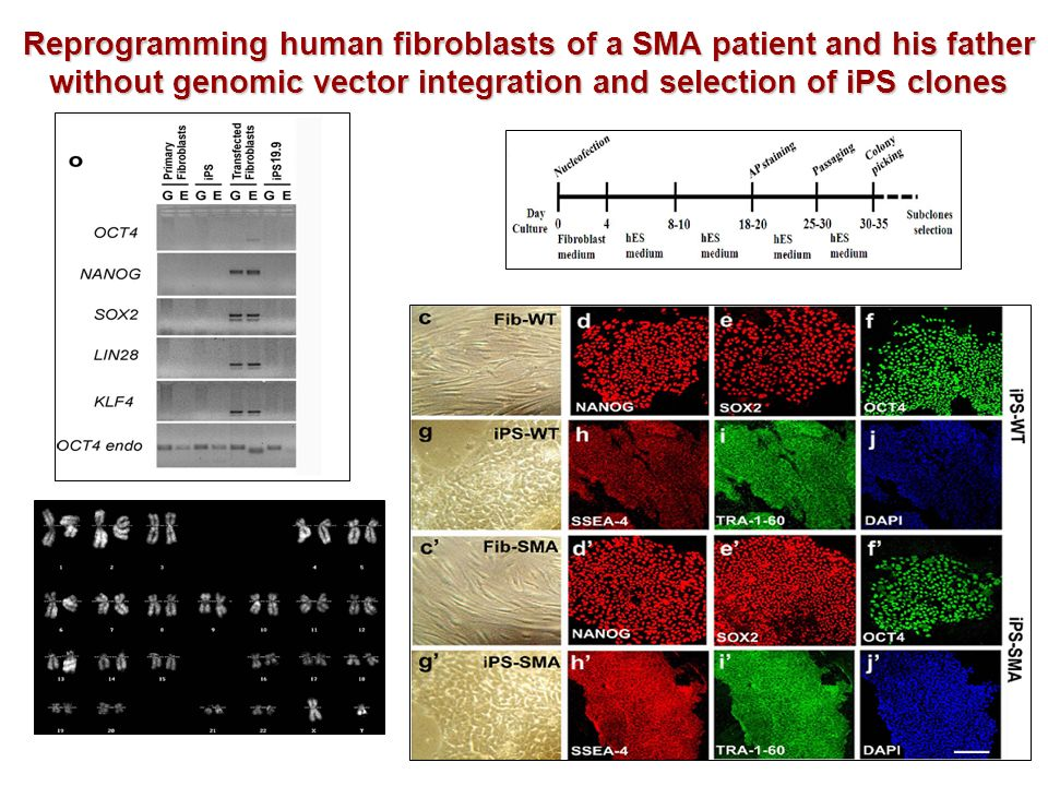 Reprogramming human fibroblasts of a SMA patient and his father without genomic vector integration and selection of iPS clones