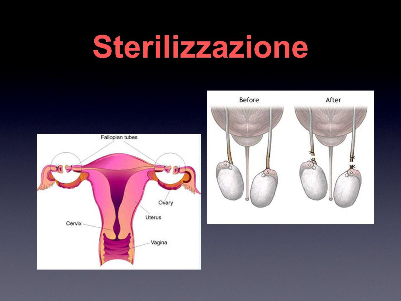 Sterilizzazione Vasectomy Tubal Ligation