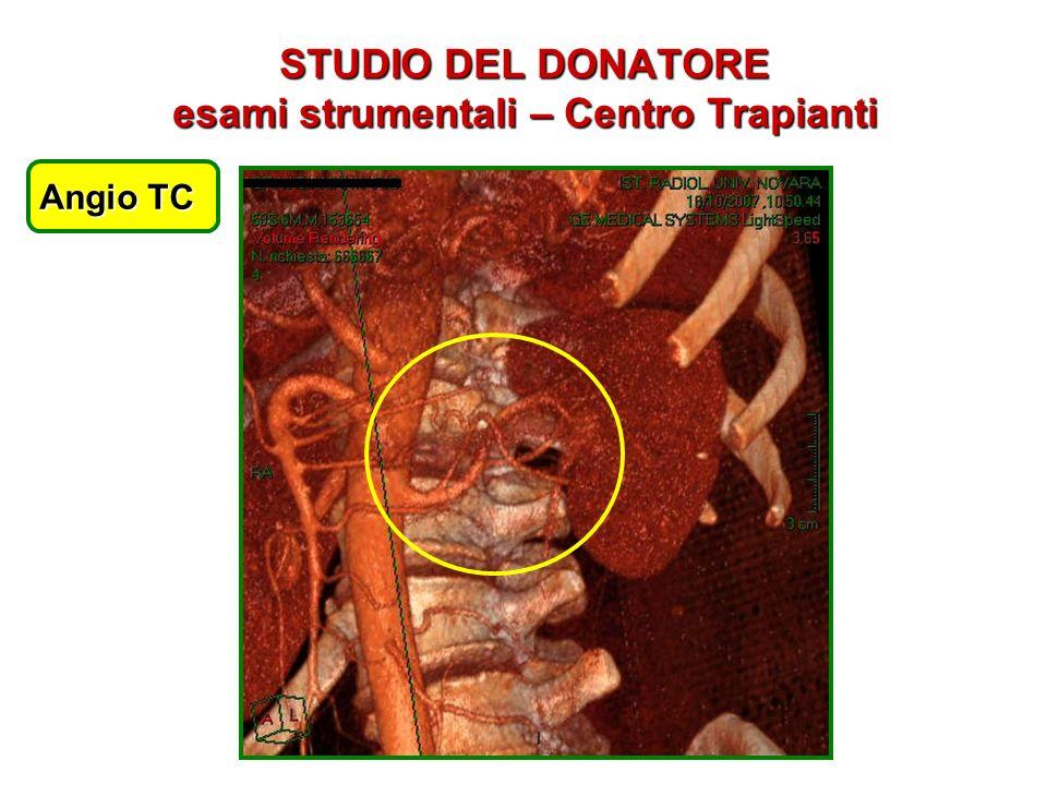 STUDIO DEL DONATORE esami strumentali – Centro Trapianti Angio TC